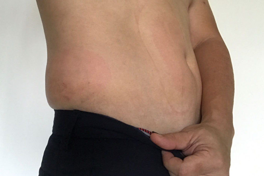 drterencetan_after-coolsculpting-day1-right