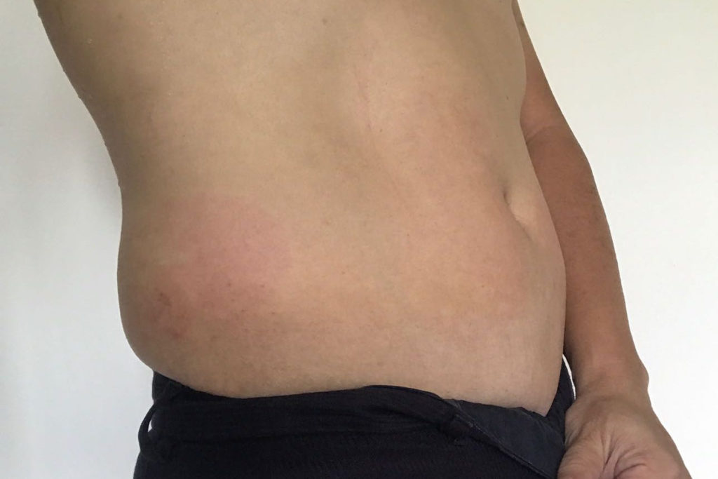 drterencetan_after-coolsculpting-day2-right