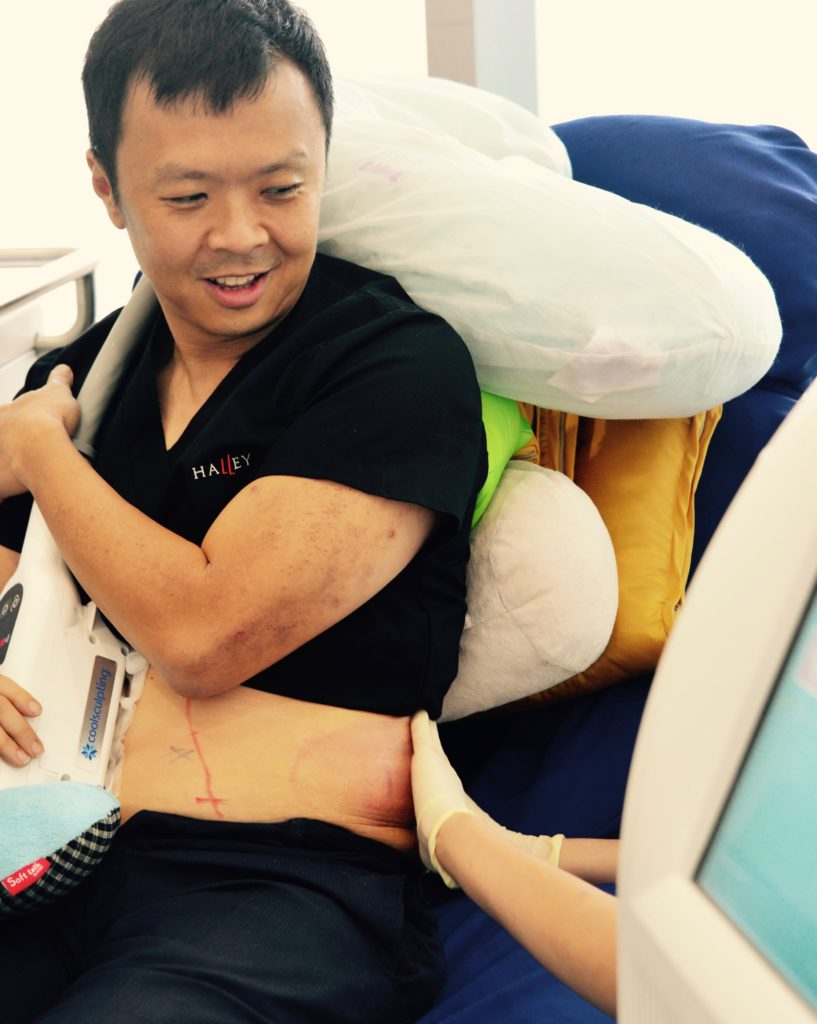 dr terence tan, weight loss journey, weight loss, losing weight, healthy living, exercise, coolsculpting, fat reduction, fat cells, calories, weight management, slimming, supplements, medication